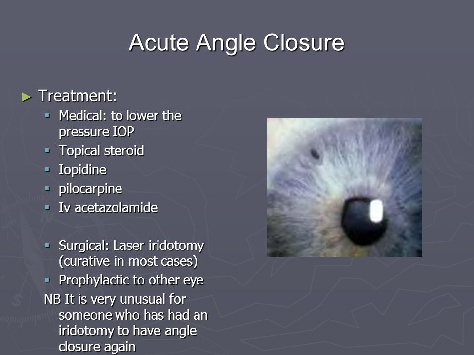 Acute Angle Closure Treatment: Medical: to lower the pressure IOP