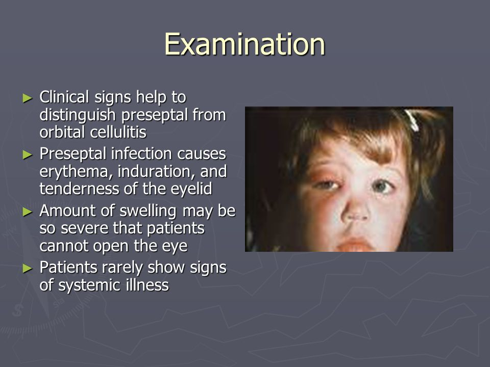 Examination Clinical signs help to distinguish preseptal from orbital cellulitis.