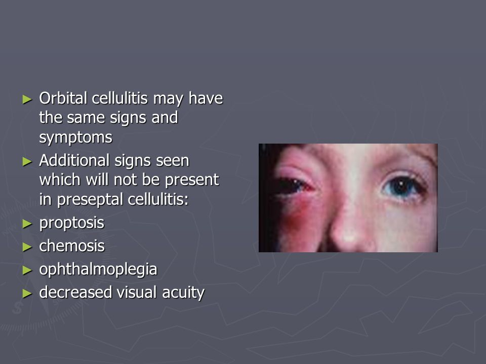 Orbital cellulitis may have the same signs and symptoms
