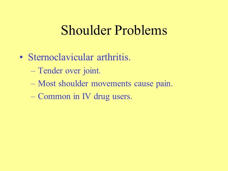 Shoulder Problems Sternoclavicular arthritis. Tender over joint.