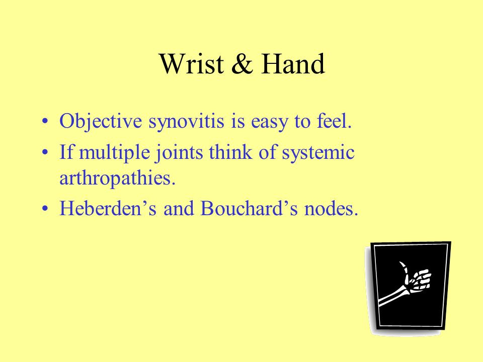 Wrist & Hand Objective synovitis is easy to feel.