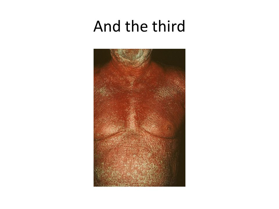 And the third Erythrodermic Psoriasis