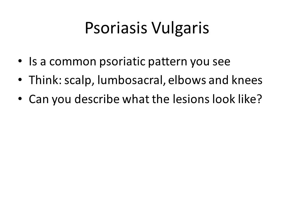 Psoriasis Vulgaris Is a common psoriatic pattern you see