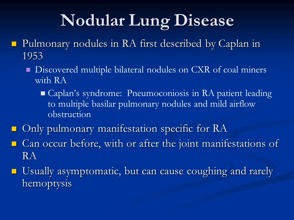 Nodular Lung Disease Pulmonary nodules in RA first described by Caplan in 1953. Discovered multiple bilateral nodules on CXR of coal miners with RA.