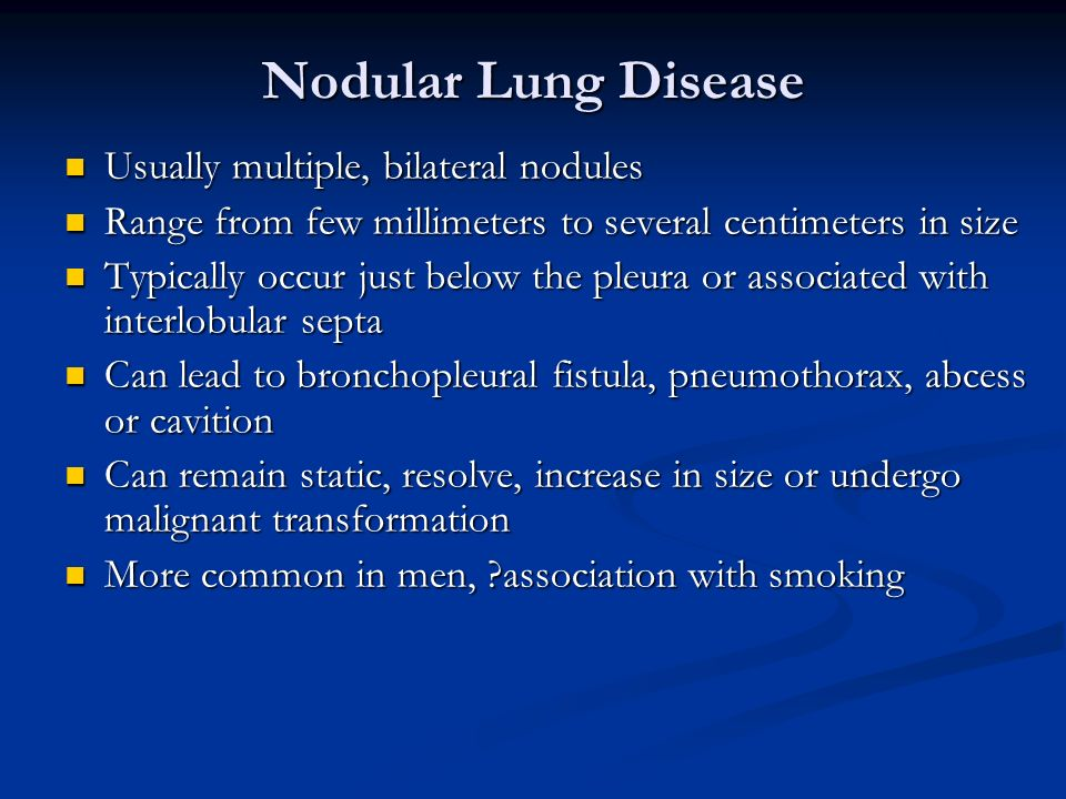 Nodular Lung Disease Usually multiple, bilateral nodules