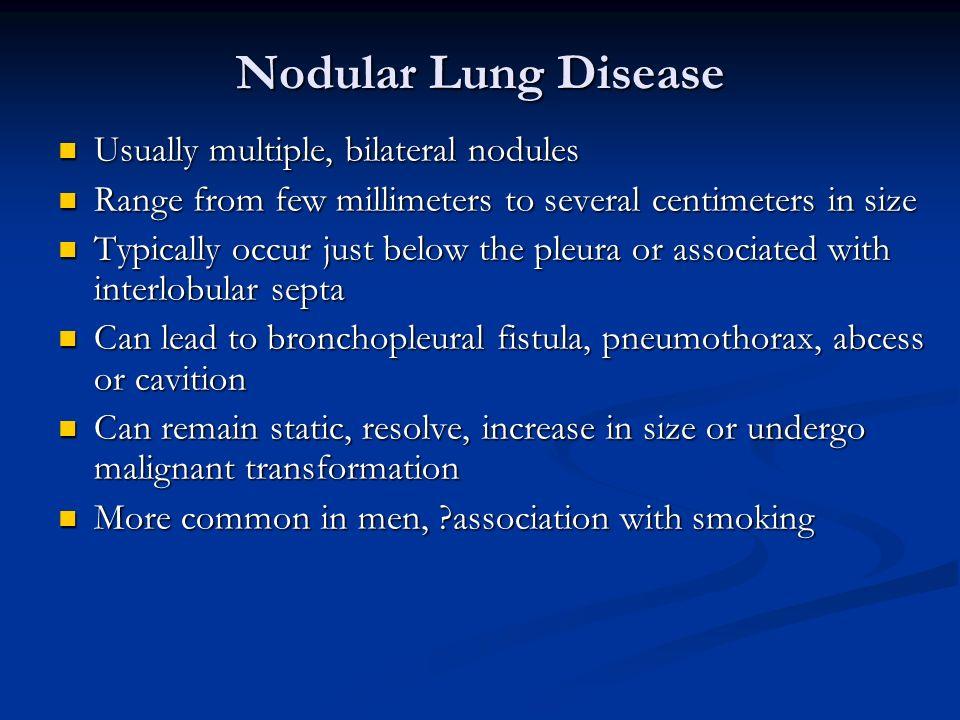 Nodular Lung Disease Usually multiple, bilateral nodules