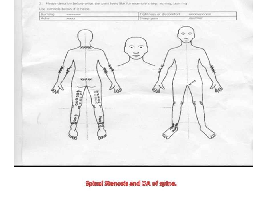 Spinal Stenosis and OA of spine.