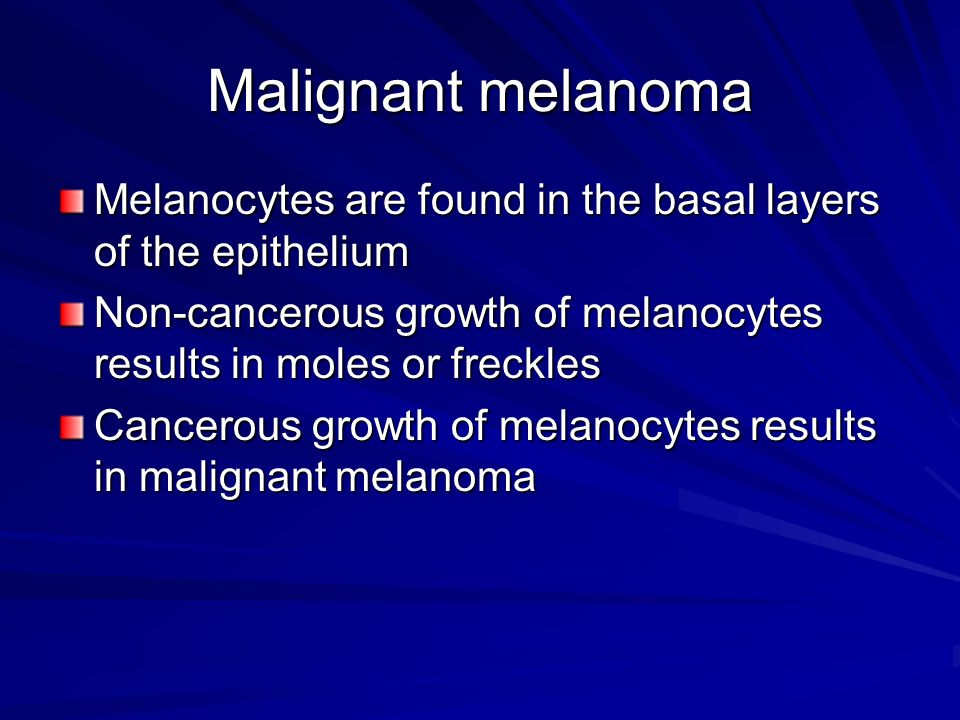 Malignant melanoma Melanocytes are found in the basal layers of the epithelium. Non-cancerous growth of melanocytes results in moles or freckles.