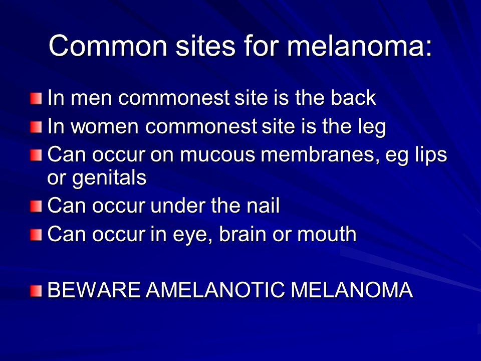 Common sites for melanoma:
