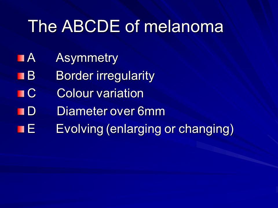 The ABCDE of melanoma A Asymmetry B Border irregularity