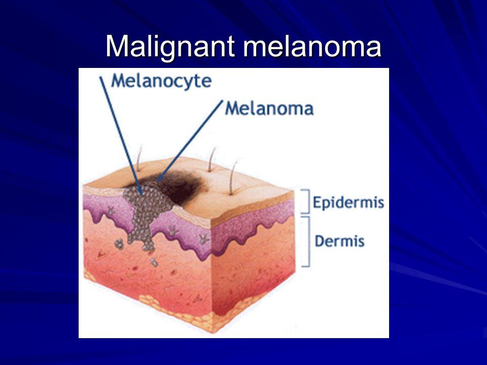 Malignant melanoma