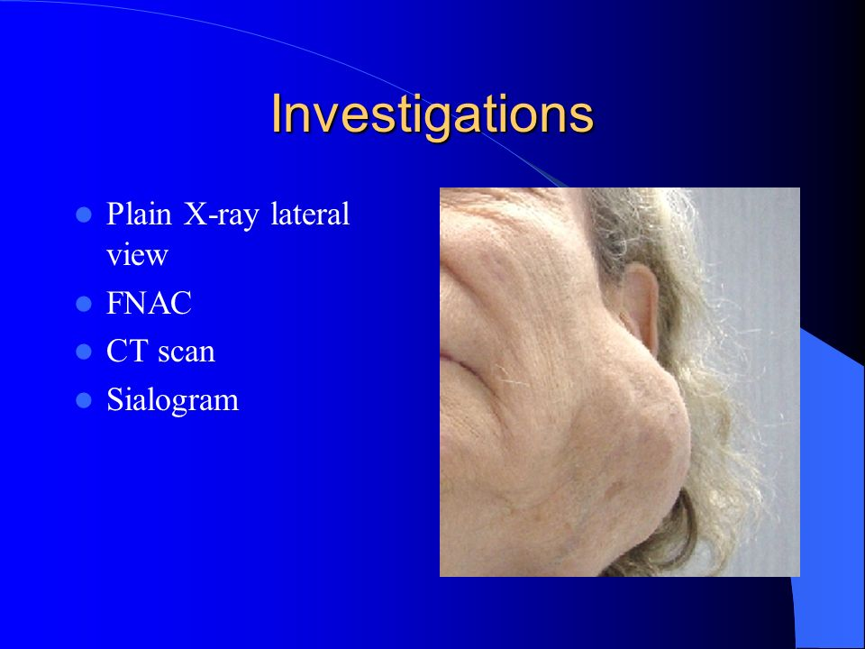 Investigations Plain X-ray lateral view FNAC CT scan Sialogram