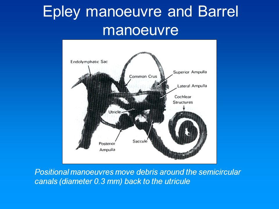 Epley manoeuvre and Barrel manoeuvre