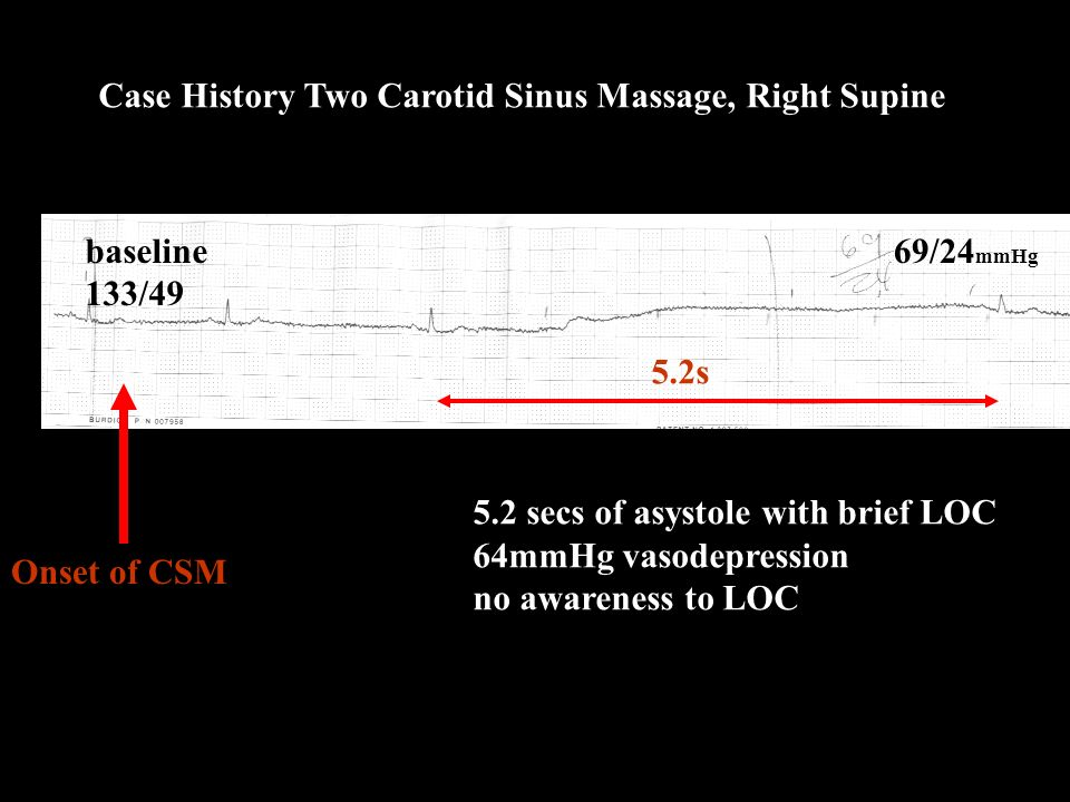 Case History Two Carotid Sinus Massage, Right Supine