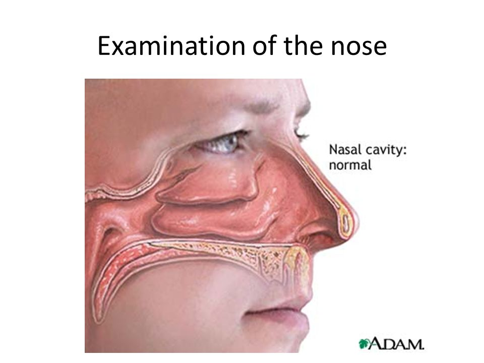 Examination of the nose