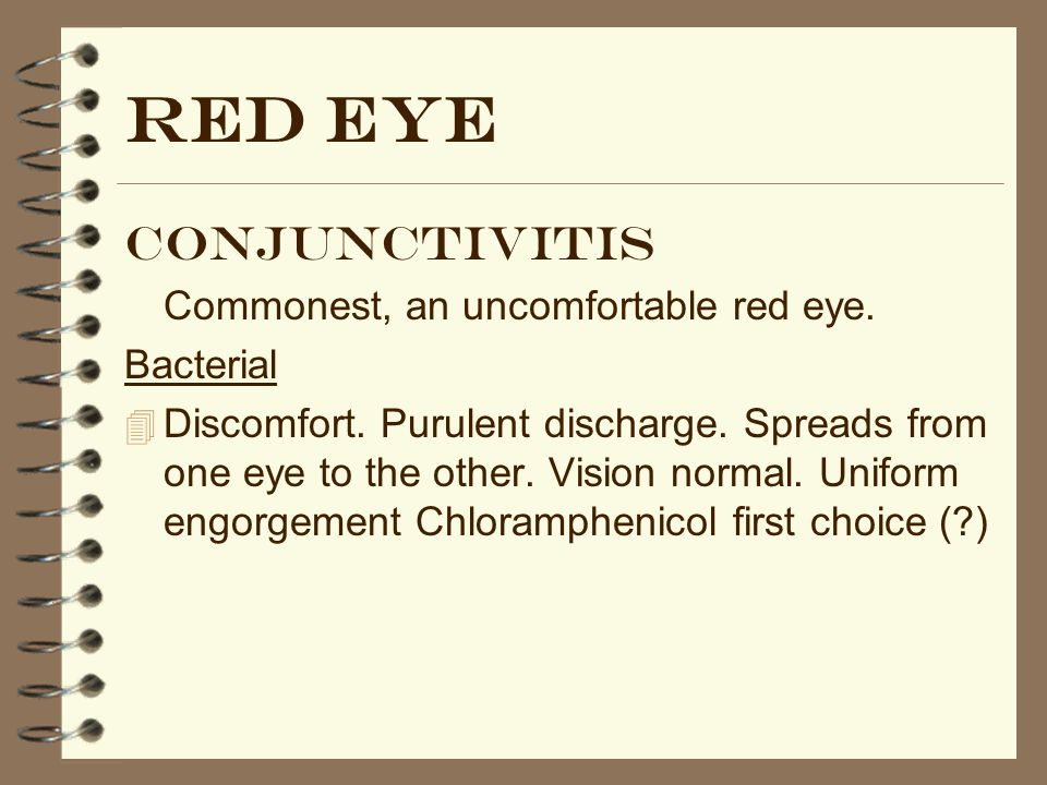 Red eye Conjunctivitis Commonest, an uncomfortable red eye. Bacterial