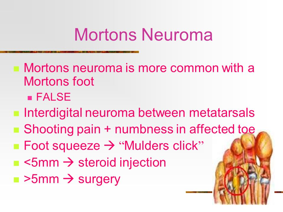 Mortons Neuroma Mortons neuroma is more common with a Mortons foot