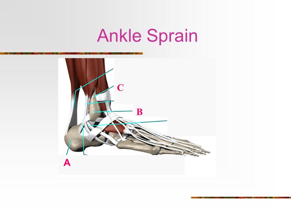 Ankle Sprain C B A