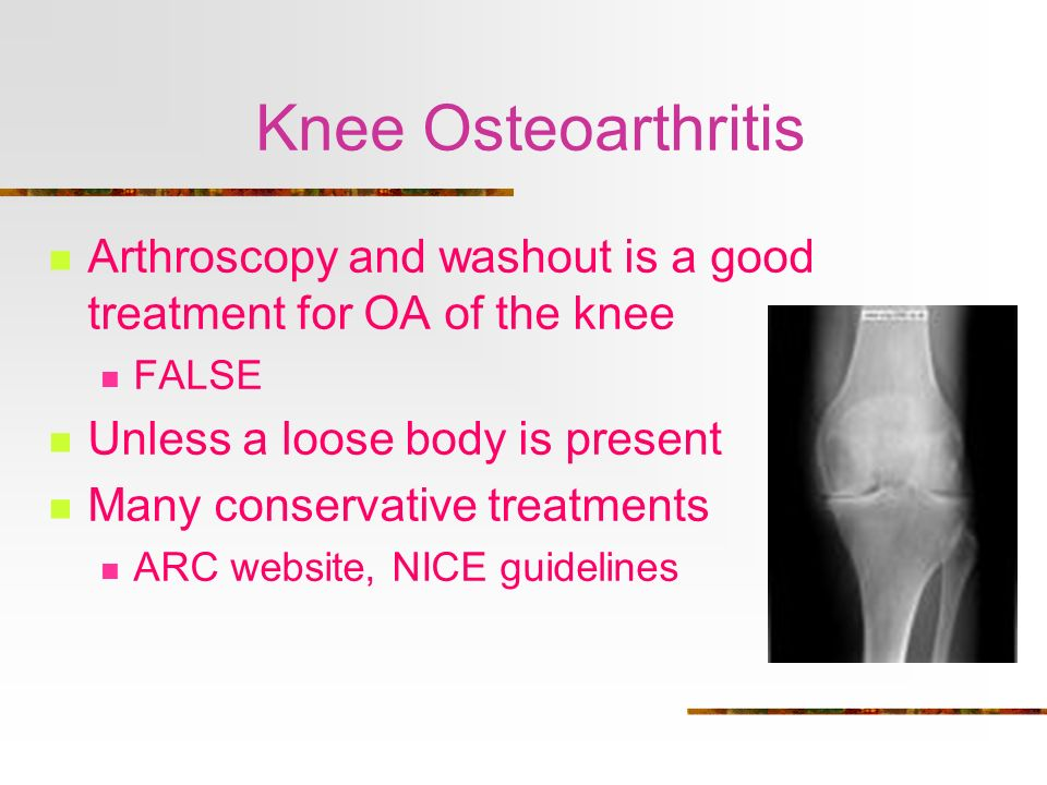 Knee Osteoarthritis Arthroscopy and washout is a good treatment for OA of the knee. FALSE. Unless a loose body is present.