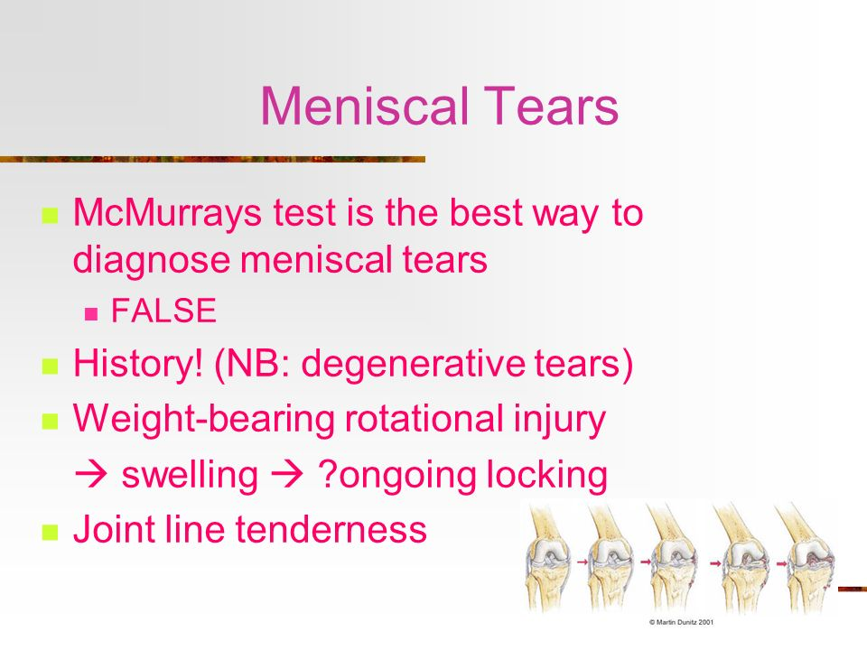 Meniscal Tears McMurrays test is the best way to diagnose meniscal tears. FALSE. History! (NB: degenerative tears)