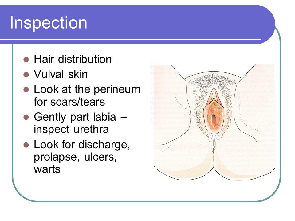 Inspection Hair distribution Vulval skin