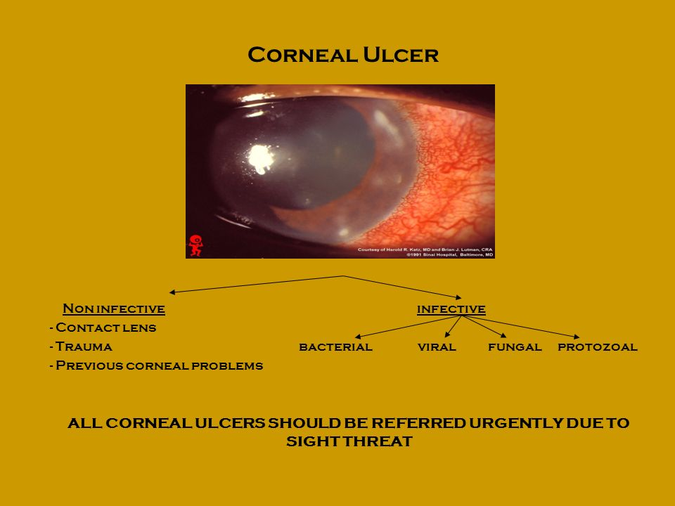ALL CORNEAL ULCERS SHOULD BE REFERRED URGENTLY DUE TO SIGHT THREAT