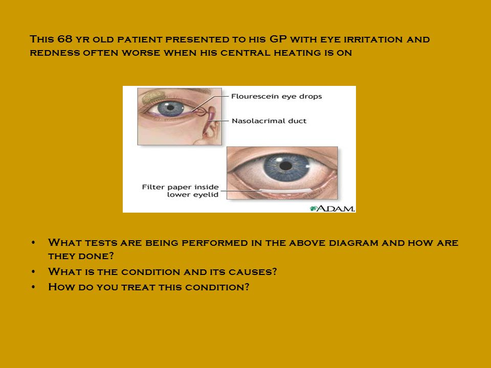This 68 yr old patient presented to his GP with eye irritation and redness often worse when his central heating is on