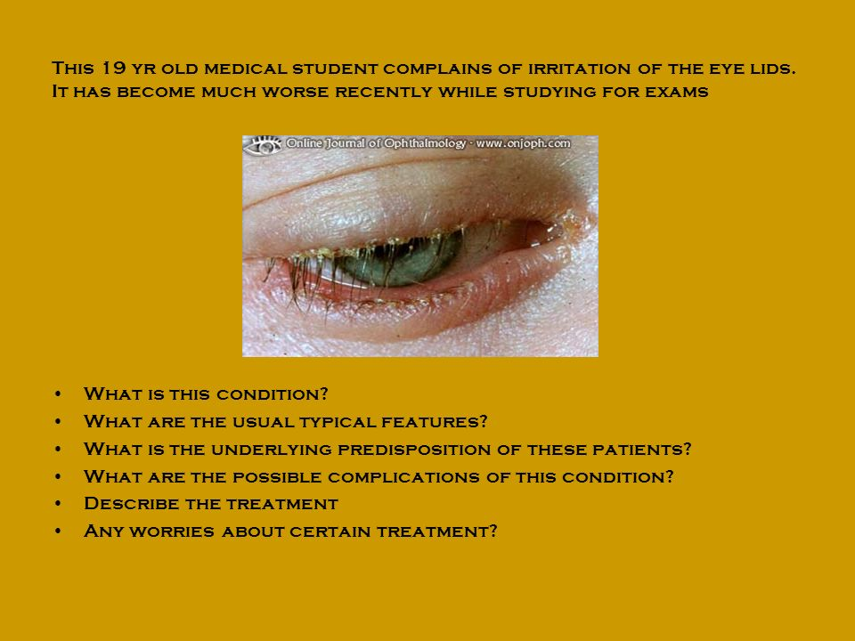 This 19 yr old medical student complains of irritation of the eye lids