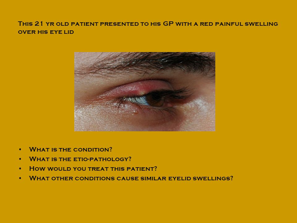 This 21 yr old patient presented to his GP with a red painful swelling over his eye lid