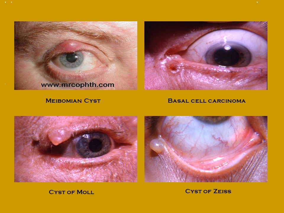 Meibomian Cyst. Basal cell carcinoma.