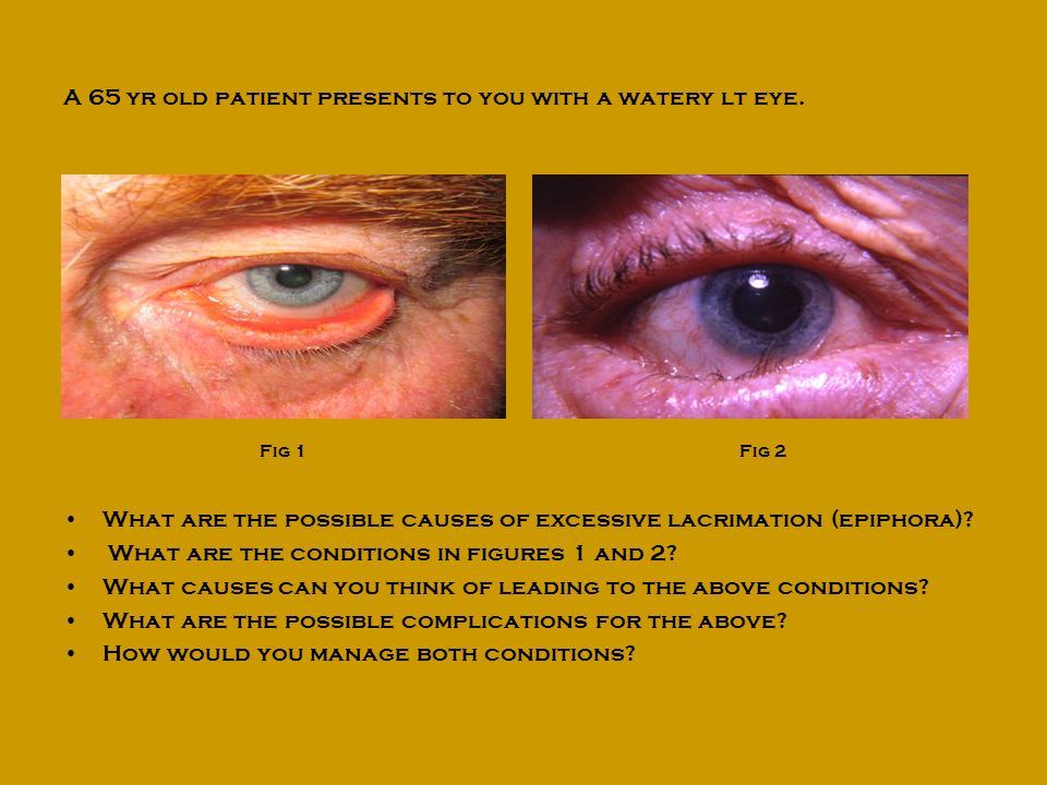 A 65 yr old patient presents to you with a watery lt eye.