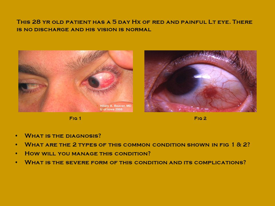 What are the 2 types of this common condition shown in fig 1 & 2
