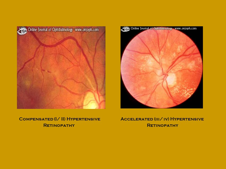 Compensated (I/ II) Hypertensive Retinopathy