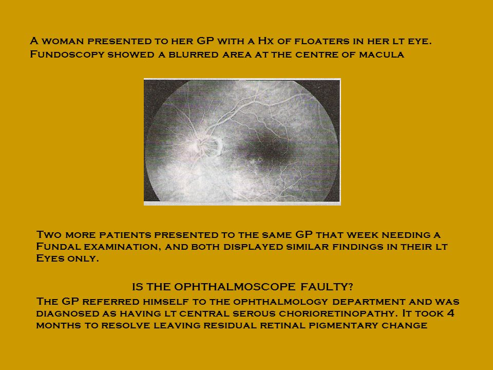 IS THE OPHTHALMOSCOPE FAULTY