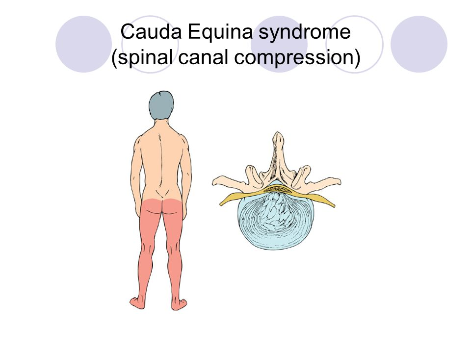 Cauda Equina syndrome (spinal canal compression)