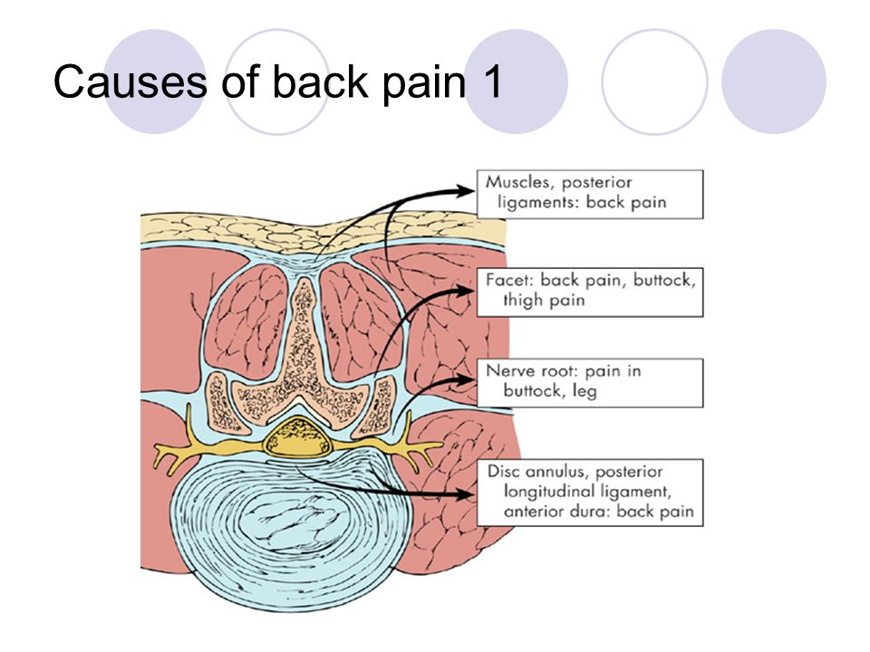 Causes of back pain 1