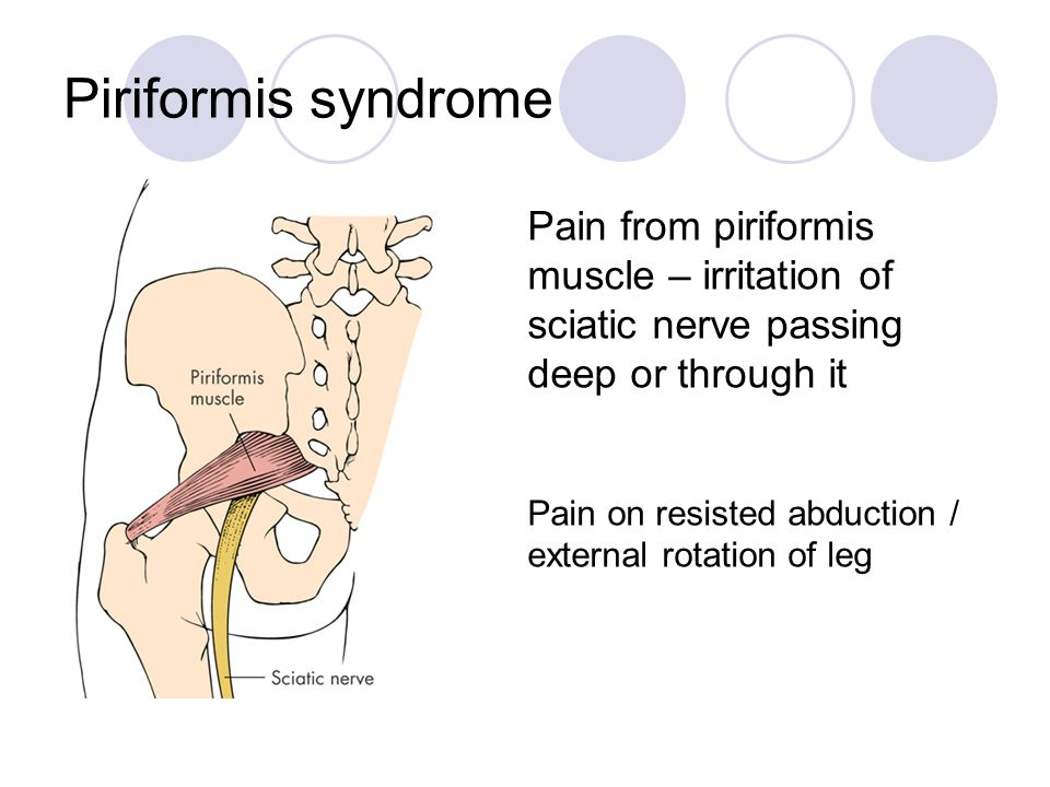 Piriformis syndrome Pain from piriformis muscle – irritation of sciatic nerve passing deep or through it.