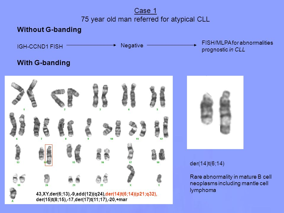 75 year old man referred for atypical CLL