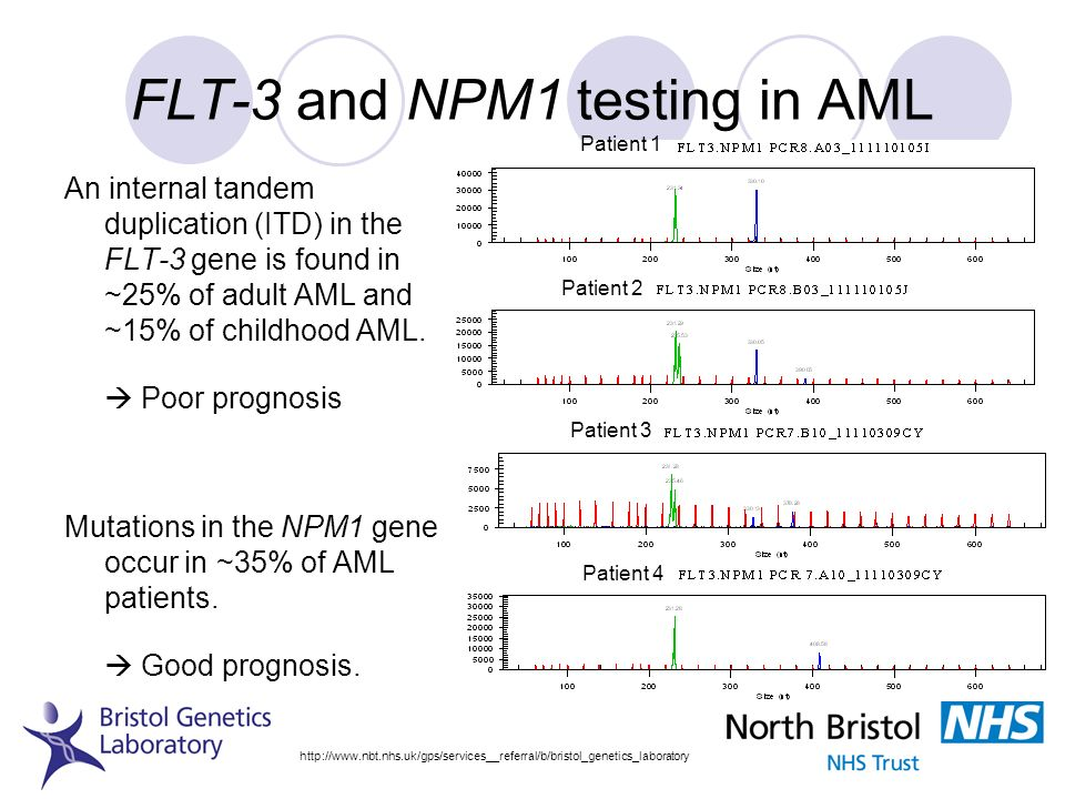FLT-3 and NPM1 testing in AML