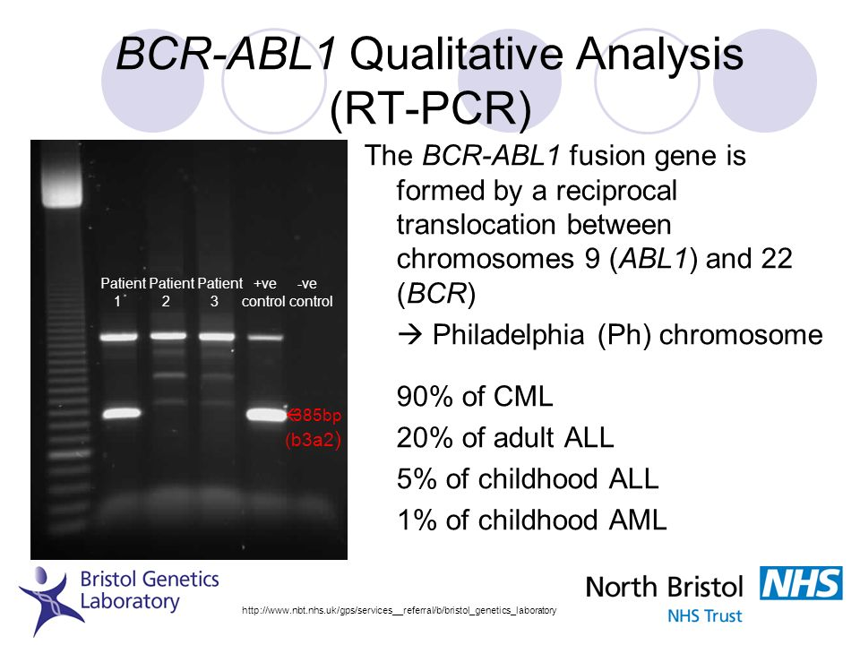 BCR-ABL1 Qualitative Analysis (RT-PCR)