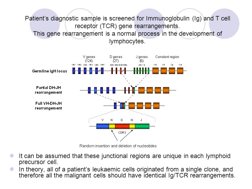 Patient's diagnostic sample is screened for Immunoglobulin (Ig) and T cell receptor (TCR) gene rearrangements.
