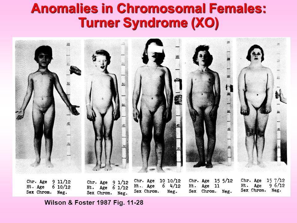 Anomalies in Chromosomal Females: Turner Syndrome (XO)