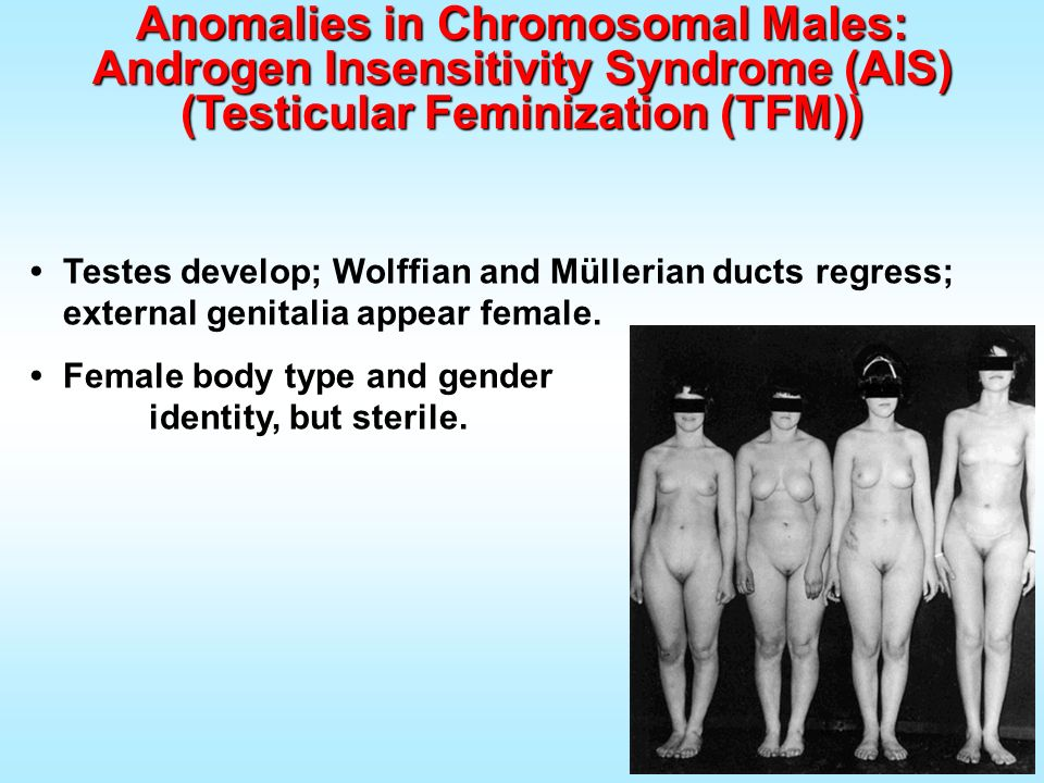 Anomalies in Chromosomal Males: Androgen Insensitivity Syndrome (AIS)