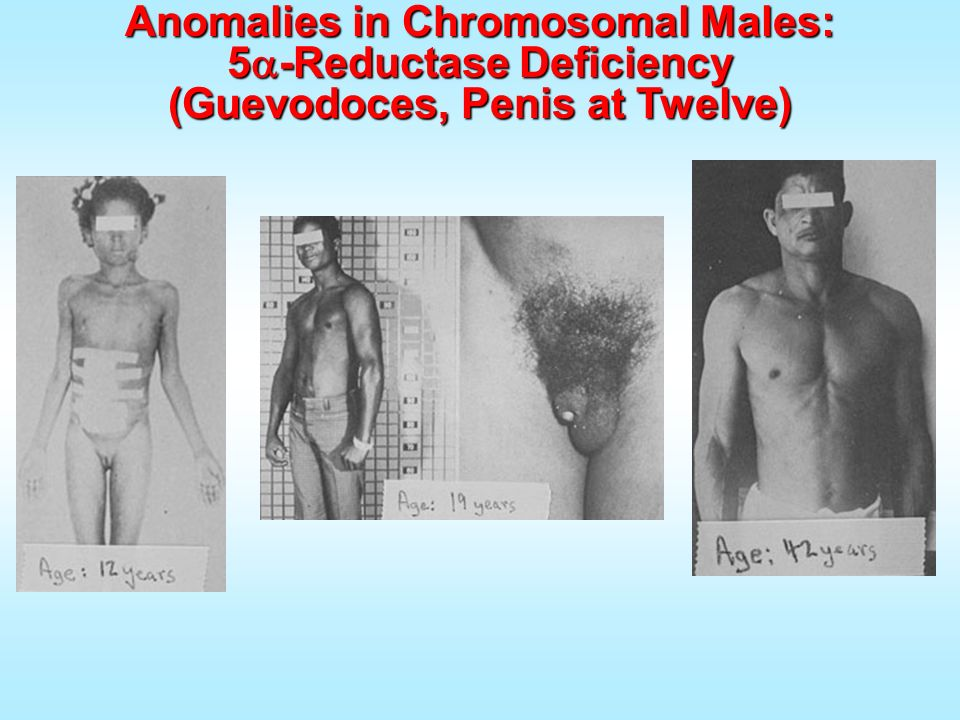 Anomalies in Chromosomal Males: 5a-Reductase Deficiency