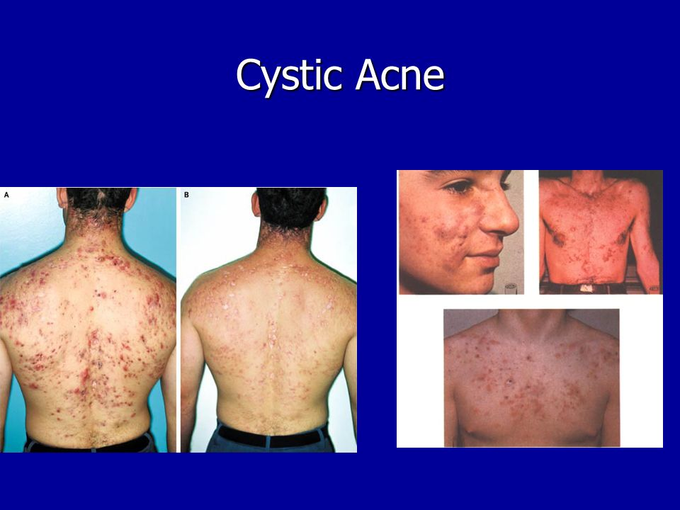 metrocream for steroid induced rosacea