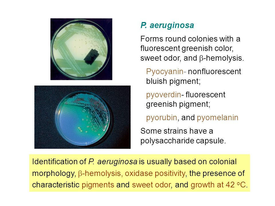 unknown identification pseudomonas aeruginosa Pseudomonas aeruginosa is a well-known cause of of medicine — endemic pseudomonas aeruginosa infection in a are labeled unknown.