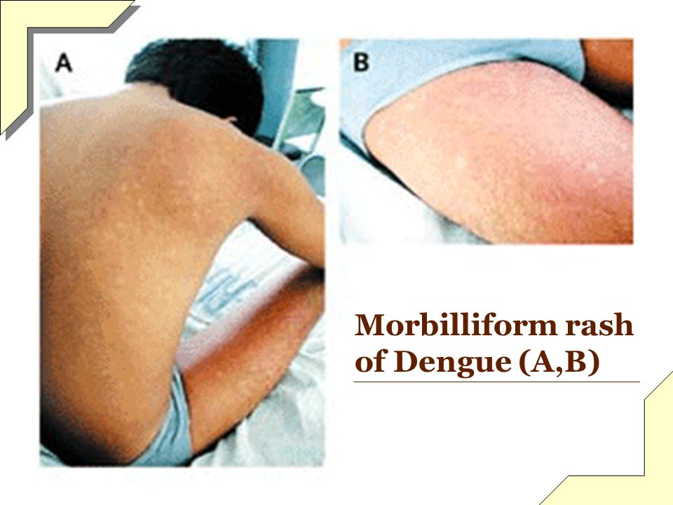 Morbilliform rash of Dengue (A,B)
