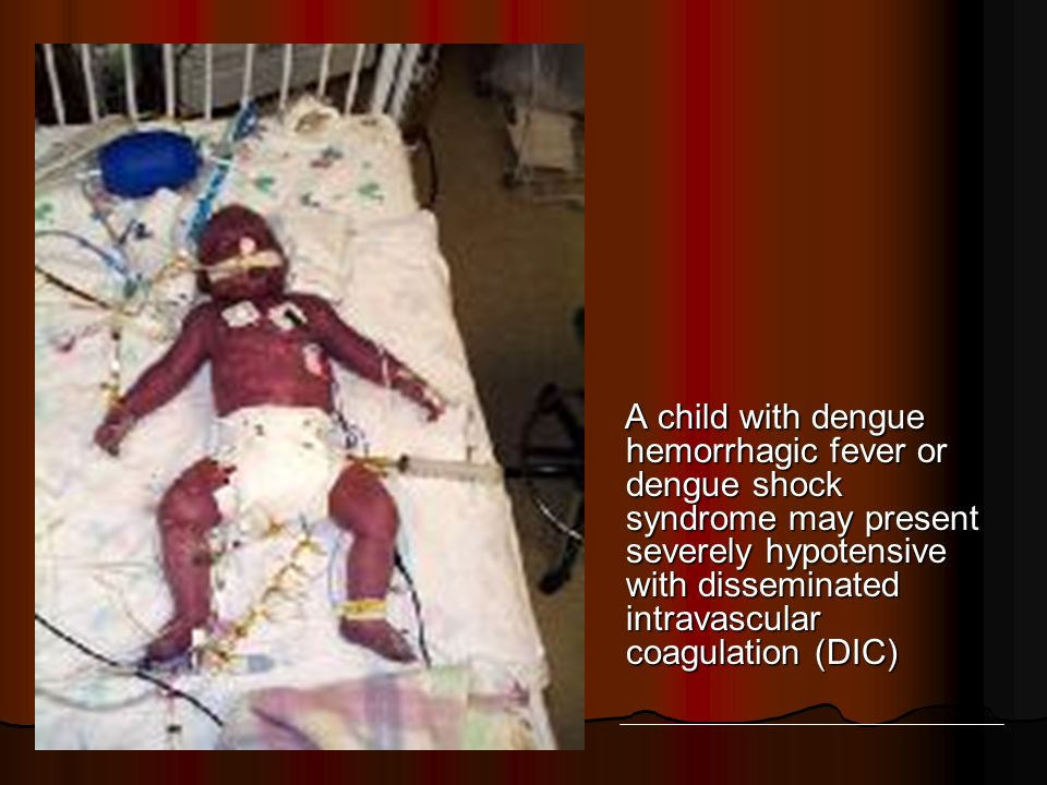 A child with dengue hemorrhagic fever or dengue shock syndrome may present severely hypotensive with disseminated intravascular coagulation (DIC)