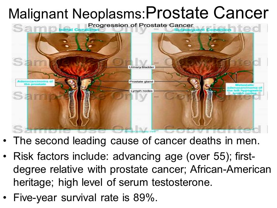 prostate cancer in african american men American men: an instrument development study  that the primary cause of increased mortality rates of prostate cancer in african american men is lack of.