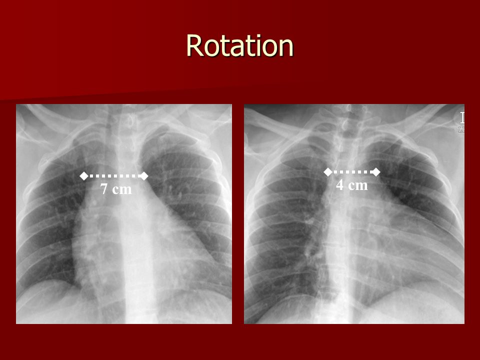 Approach To The Mediastinum In Trauma Ppt Video Online